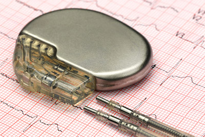 Wireless Pacemaker